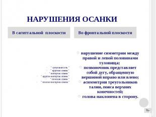 """НАРУШЕНИЯ ОСАНКИ """" сутуловатость """" """" круглая спина """" """""""