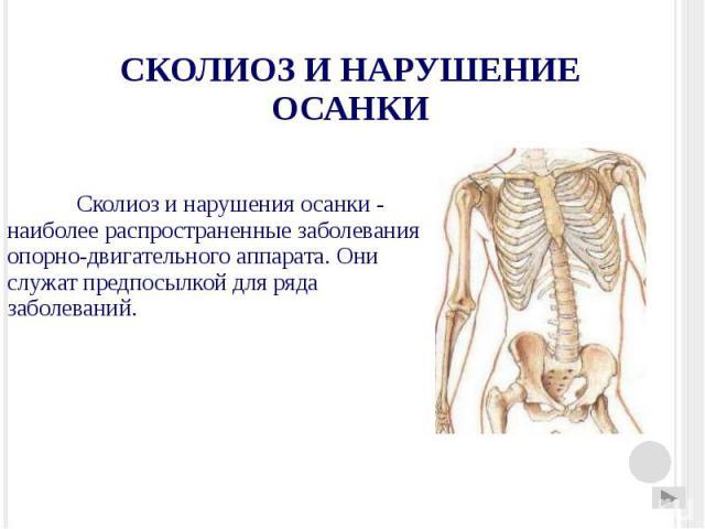 СКОЛИОЗ И НАРУШЕНИЕ ОСАНКИ Сколиоз и нарушения осанки - наиболее распространенные заболевания опорно-двигательного аппарата. Они служат предпосылкой для ряда заболеваний.