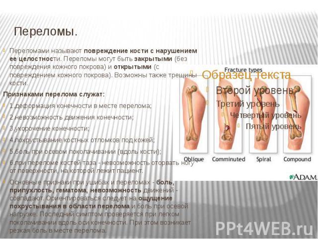 Переломы. Переломами называют повреждение кости с нарушением ее целостности. Переломы могут быть закрытыми (без повреждения кожного покрова) и открытыми (с повреждением кожного покрова). Возможны также трещины кости. Признаками перелома служат: 1.де…
