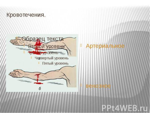 Кровотечения. Артериальное венозное