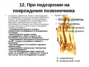 12. При подозрении на повреждения позвоночника осторожно, вдвоем или втроем, пер