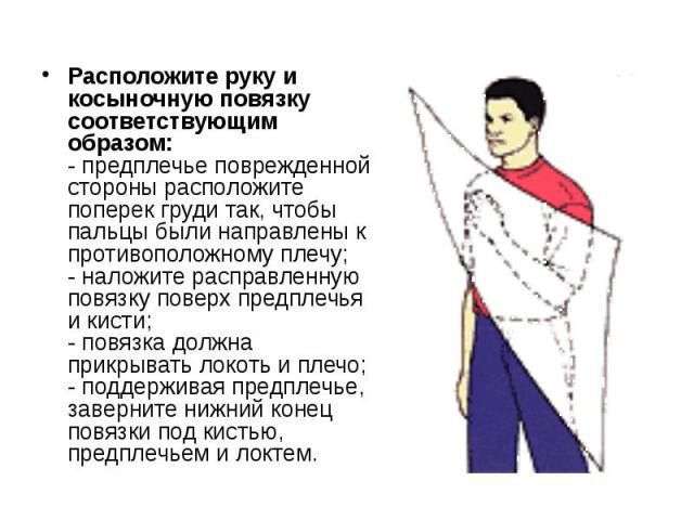Расположите руку и косыночную повязку соответствующим образом: - предплечье поврежденной стороны расположите поперек груди так, чтобы пальцы были направлены к противоположному плечу; - наложите расправленную повязку поверх предплечья и кисти; - повя…