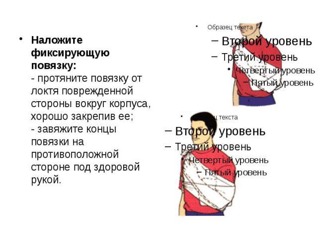 Наложите фиксирующую повязку: - протяните повязку от локтя поврежденной стороны вокруг корпуса, хорошо закрепив ее; - завяжите концы повязки на противоположной стороне под здоровой рукой. Наложите фиксирующую повязку: - протяните повязку от локтя по…