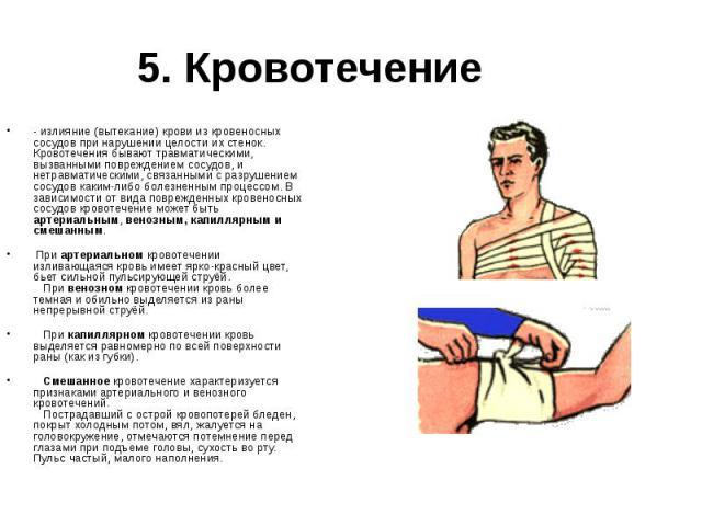 5. Кровотечение - излияние (вытекание) крови из кровеносных сосудов при нарушении целости их стенок. Кровотечения бывают травматическими, вызванными повреждением сосудов, и нетравматическими, связанными с разрушением сосудов каким-либо болезненным п…
