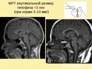 МРТ вертикальный размер гипофиза <3 мм (при норме 5-10 мм!)
