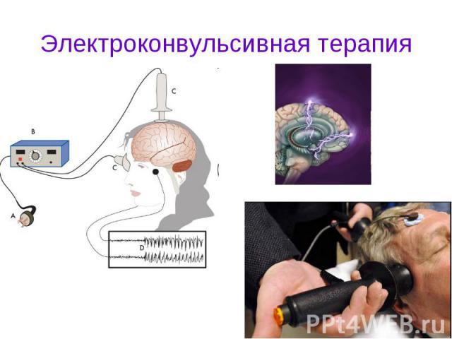 Электроконвульсивная терапия