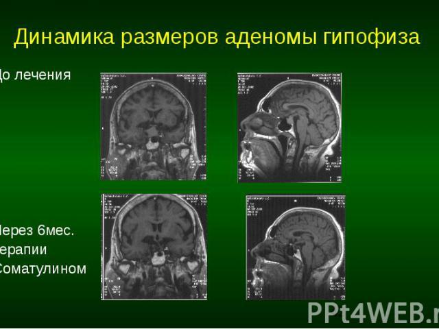 Динамика размеров аденомы гипофиза До лечения Через 6мес. терапии Cоматулином