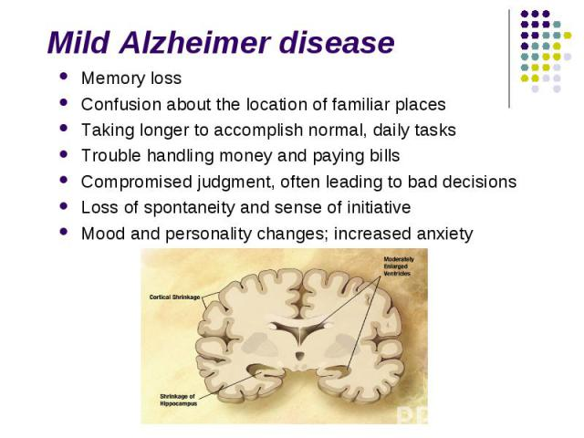 Memory loss Memory loss Confusion about the location of familiar places Taking longer to accomplish normal, daily tasks Trouble handling money and paying bills Compromised judgment, often leading to bad decisions Loss of spontaneity and sense of ini…