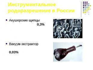 Акушерские щипцы 0,3% Акушерские щипцы 0,3% Вакуум-экстрактор 0,03%