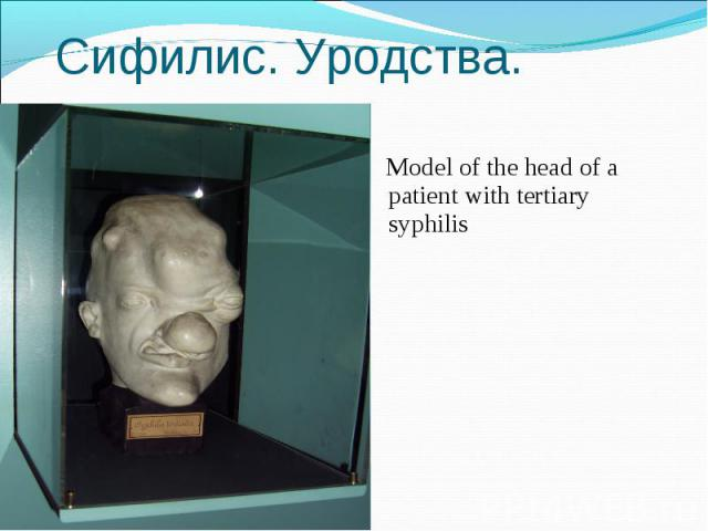 Model of the head of a patient with tertiary syphilis Model of the head of a patient with tertiary syphilis