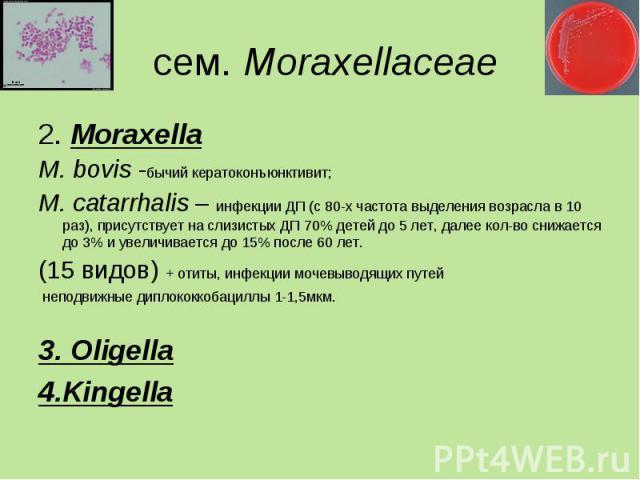 2. Moraxella 2. Moraxella M. bovis -бычий кератоконъюнктивит; M. сatarrhalis – инфекции ДП (с 80-х частота выделения возрасла в 10 раз), присутствует на слизистых ДП 70% детей до 5 лет, далее кол-во снижается до 3% и увеличивается до 15% после 60 ле…