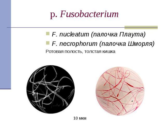 F. nucleatum (палочка Плаута) F. nucleatum (палочка Плаута) F. necrophorum (палочка Шморля) Ротовая полость, толстая кишка