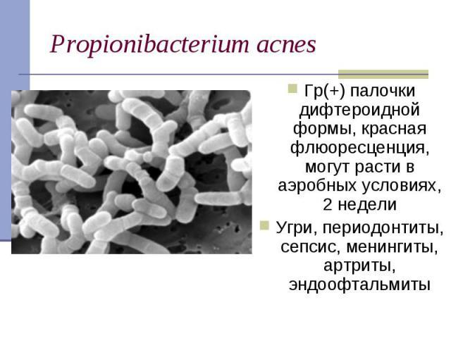 Гр(+) палочки дифтероидной формы, красная флюоресценция, могут расти в аэробных условиях, 2 недели Гр(+) палочки дифтероидной формы, красная флюоресценция, могут расти в аэробных условиях, 2 недели Угри, периодонтиты, сепсис, менингиты, артриты, энд…