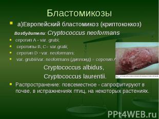 а)Европейский бластомикоз (криптококкоз) а)Европейский бластомикоз (криптококкоз