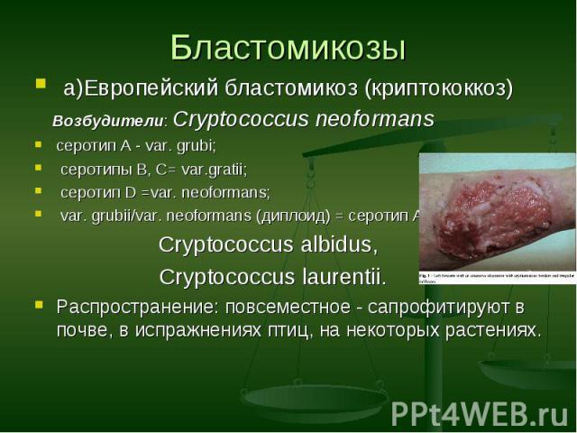 а)Европейский бластомикоз (криптококкоз) а)Европейский бластомикоз (криптококкоз) Возбудители: Cryptococcus neoformans серотип A - var. grubi; серотипы B, C= var.gratii; серотип D =var. neoformans; var. grubii/var. neoformans (диплоид) = серотип AD,…