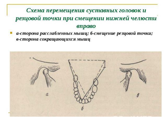 а-сторона расслабленных мышц; б-смещение резцовой точки; в-сторона сокращающихся мышц а-сторона расслабленных мышц; б-смещение резцовой точки; в-сторона сокращающихся мышц