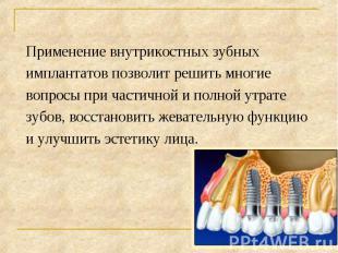 Применение внутрикостных зубных Применение внутрикостных зубных имплантатов позв