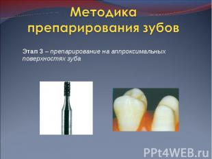 Этап 3 – препарирование на аппроксимальных поверхностях зуба Этап 3 – препариров