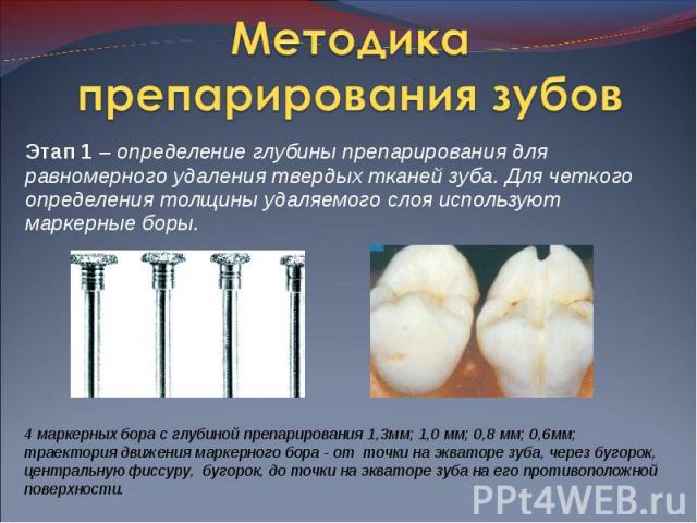 Этап 1 – определение глубины препарирования для равномерного удаления твердых тканей зуба. Для четкого определения толщины удаляемого слоя используют маркерные боры. Этап 1 – определение глубины препарирования для равномерного удаления твердых ткане…
