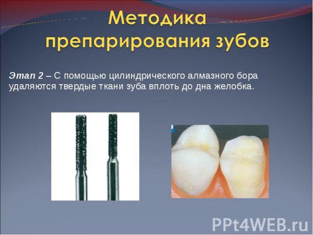 Этап 2 – С помощью цилиндрического алмазного бора удаляются твердые ткани зуба вплоть до дна желобка. Этап 2 – С помощью цилиндрического алмазного бора удаляются твердые ткани зуба вплоть до дна желобка.