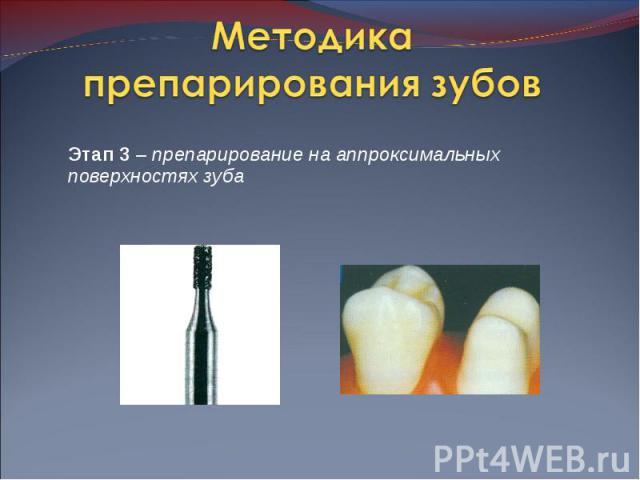 Этап 3 – препарирование на аппроксимальных поверхностях зуба Этап 3 – препарирование на аппроксимальных поверхностях зуба