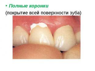 Полные коронки Полные коронки (покрытие всей поверхности зуба)