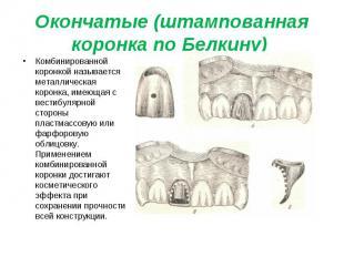 Комбинированной коронкой называется металлическая коронка, имеющая с вестибулярн