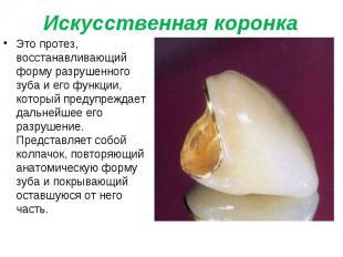 Это протез, восстанавливающий форму разрушенного зуба и его функции, который пре