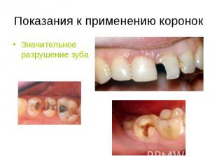 Значительное разрушение зуба Значительное разрушение зуба