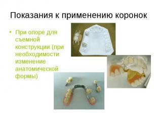 При опоре для съемной конструкции (при необходимости изменение анатомической фор