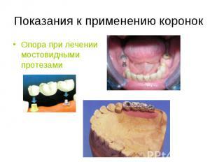 Опора при лечении мостовидными протезами Опора при лечении мостовидными протезам