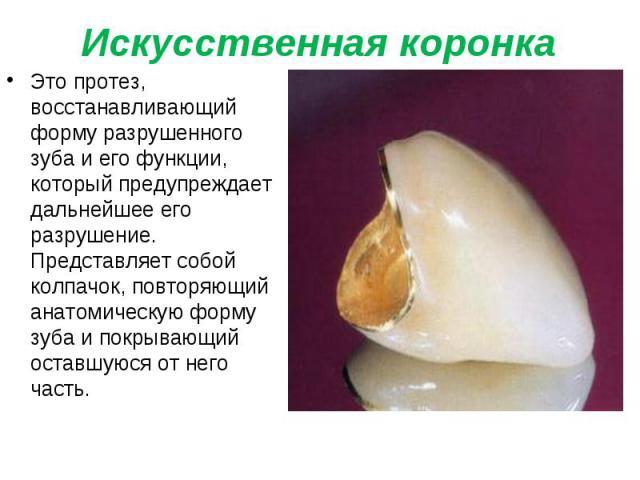 Это протез, восстанавливающий форму разрушенного зуба и его функции, который предупреждает дальнейшее его разрушение. Представляет собой колпачок, повторяющий анатомическую форму зуба и покрывающий оставшуюся от него часть. Это протез, восстанавлива…