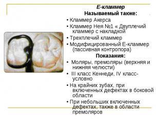 Е-кламмер Е-кламмер Называемый также: • Кламмер Акерса • Кламмер Нея №1 « Двупле