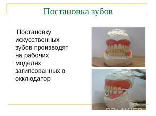 Постановку искусственных зубов производят на рабочих моделях загипсованных в окк