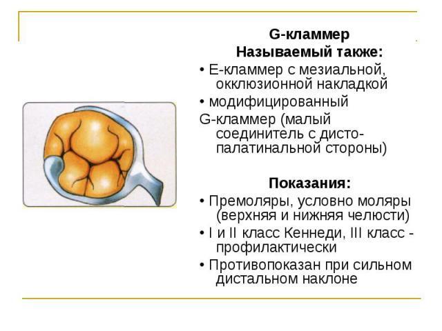 G-кламмер G-кламмер Называемый также: • Е-кламмер с мезиальной, окклюзионной накладкой • модифицированный G-кламмер (малый соединитель с дисто-палатинальной стороны) Показания: • Премоляры, условно моляры (верхняя и нижняя челюсти) • I и II класс Ке…