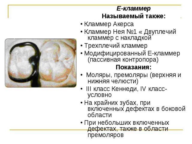 Е-кламмер Е-кламмер Называемый также: • Кламмер Акерса • Кламмер Нея №1 « Двуплечий кламмер с накладкой • Трехплечий кламмер • Модифицированный Е-кламмер (пассивная контропора) Показания: • Моляры, премоляры (верхняя и нижняя челюсти) • III класс Ке…
