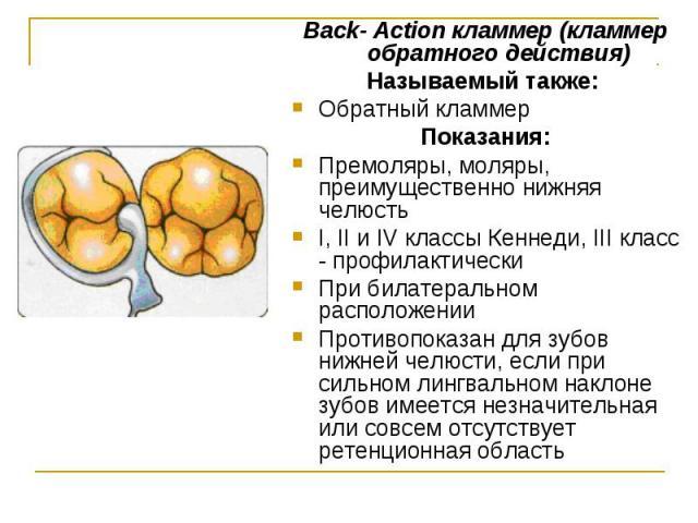 Back- Action кламмер (кламмер обратного действия) Back- Action кламмер (кламмер обратного действия) Называемый также: Обратный кламмер Показания: Премоляры, моляры, преимущественно нижняя челюсть I, II и IV классы Кеннеди, III класс - профилактическ…