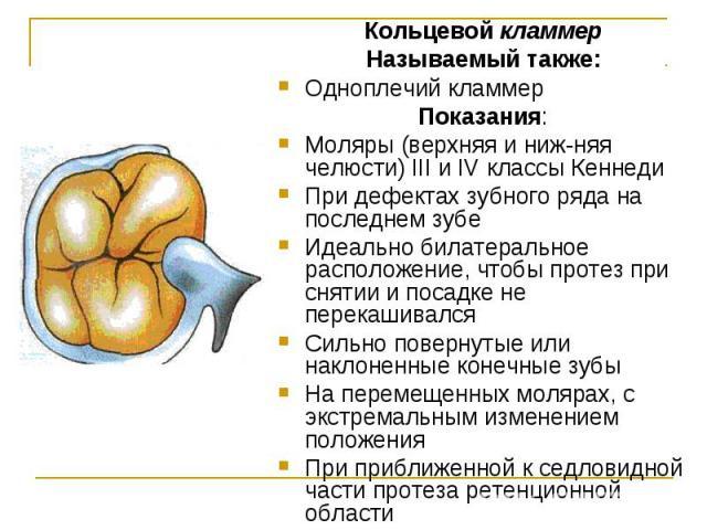 Кольцевой кламмер Кольцевой кламмер Называемый также: Одноплечий кламмер Показания: Моляры (верхняя и нижняя челюсти) III и IV классы Кеннеди При дефектах зубного ряда на последнем зубе Идеально билатеральное расположение, чтобы протез при снят…