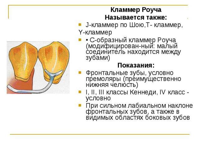 Кламмер Роуча Кламмер Роуча Называется также: J-кламмер по Шою,T- кламмер, Y-кламмер • С-образный кламмер Роуча (модифицированный: малый соединитель находится между зубами) Показания: Фронтальные зубы, условно премоляры (преимущественно нижняя …