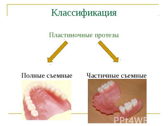 Пластиночные протезы Пластиночные протезы Полные съемные Частичные съемные