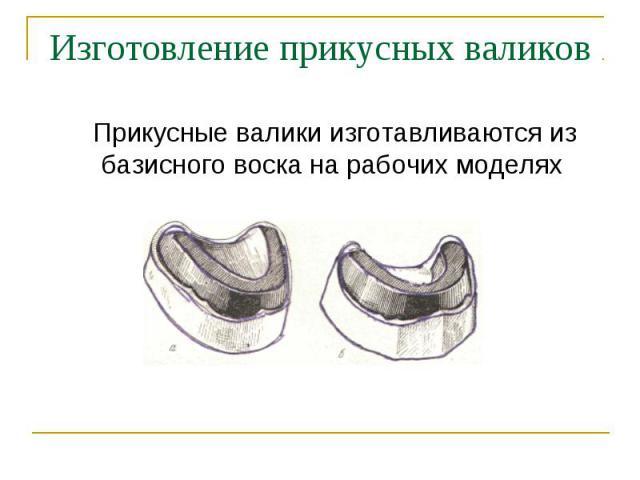 Прикусные валики изготавливаются из базисного воска на рабочих моделях Прикусные валики изготавливаются из базисного воска на рабочих моделях