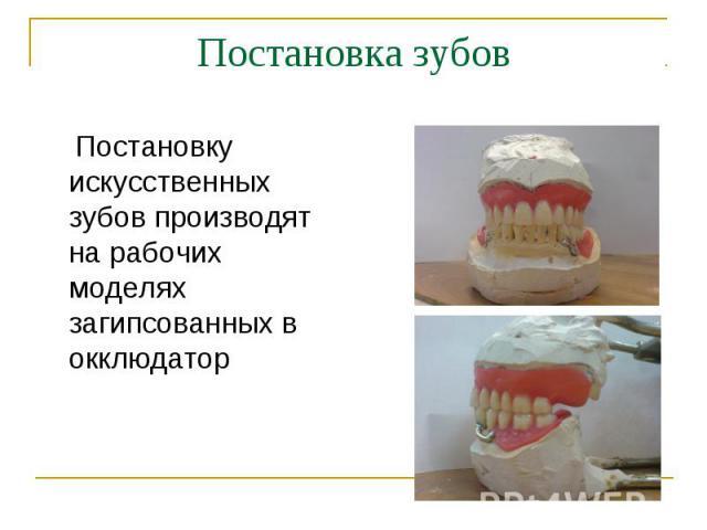 Постановку искусственных зубов производят на рабочих моделях загипсованных в окклюдатор Постановку искусственных зубов производят на рабочих моделях загипсованных в окклюдатор
