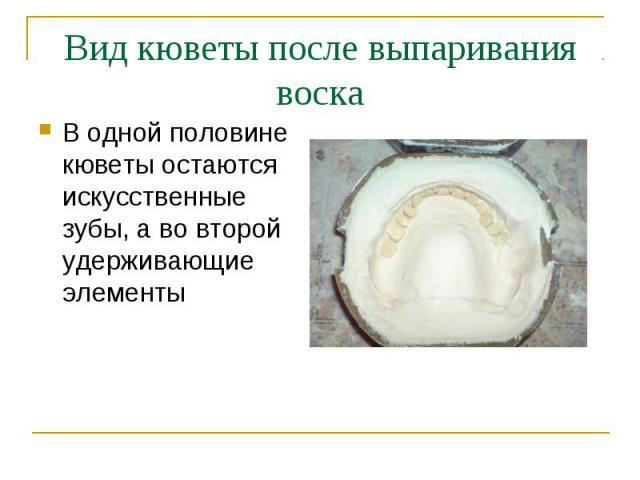 В одной половине кюветы остаются искусственные зубы, а во второй удерживающие элементы В одной половине кюветы остаются искусственные зубы, а во второй удерживающие элементы
