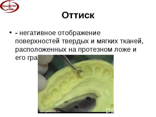 - негативное отображение поверхностей твердых и мягких тканей, расположенных на протезном ложе и его границах. - негативное отображение поверхностей твердых и мягких тканей, расположенных на протезном ложе и его границах.