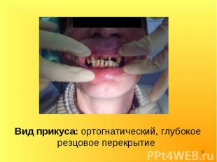 Вид прикуса: ортогнатический, глубокое резцовое перекрытие Вид прикуса: ортогнат