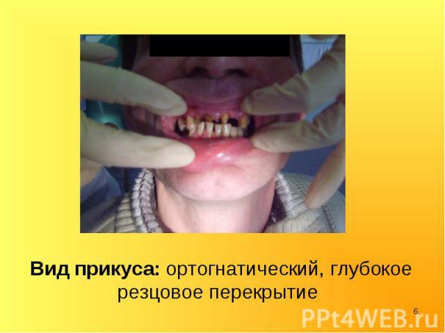 Вид прикуса: ортогнатический, глубокое резцовое перекрытие Вид прикуса: ортогнатический, глубокое резцовое перекрытие
