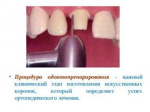 Процедура одонтопрепарирования - важный клинический этап изготовления искусствен