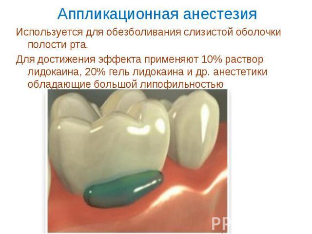 Используется для обезболивания слизистой оболочки полости рта. Используется для обезболивания слизистой оболочки полости рта. Для достижения эффекта применяют 10% раствор лидокаина, 20% гель лидокаина и др. анестетики обладающие большой липофильностью
