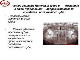 Нерассасывание корней молочных зубов; Нерассасывание корней молочных зубов; Ранн