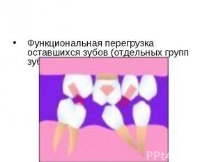 Функциональная перегрузка оставшихся зубов (отдельных групп зубов). Функциональн